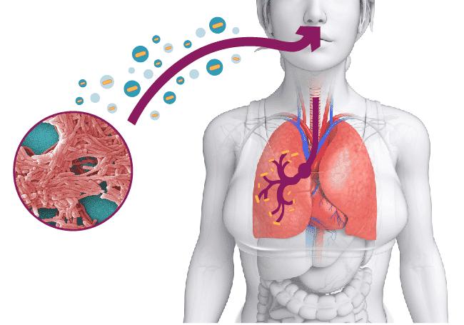 legionella pneumophila nei polmoni